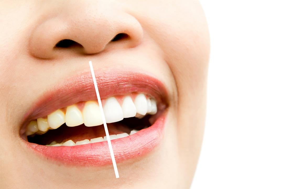 Dr.曾 牙齒美白